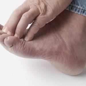 Грибок на ногах – симптомы заболевания и эффективное лечение в домашних условиях